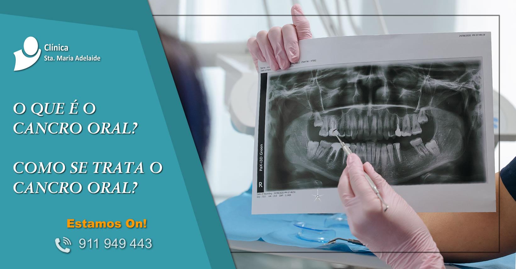Cancro oral como prevenir e tratar