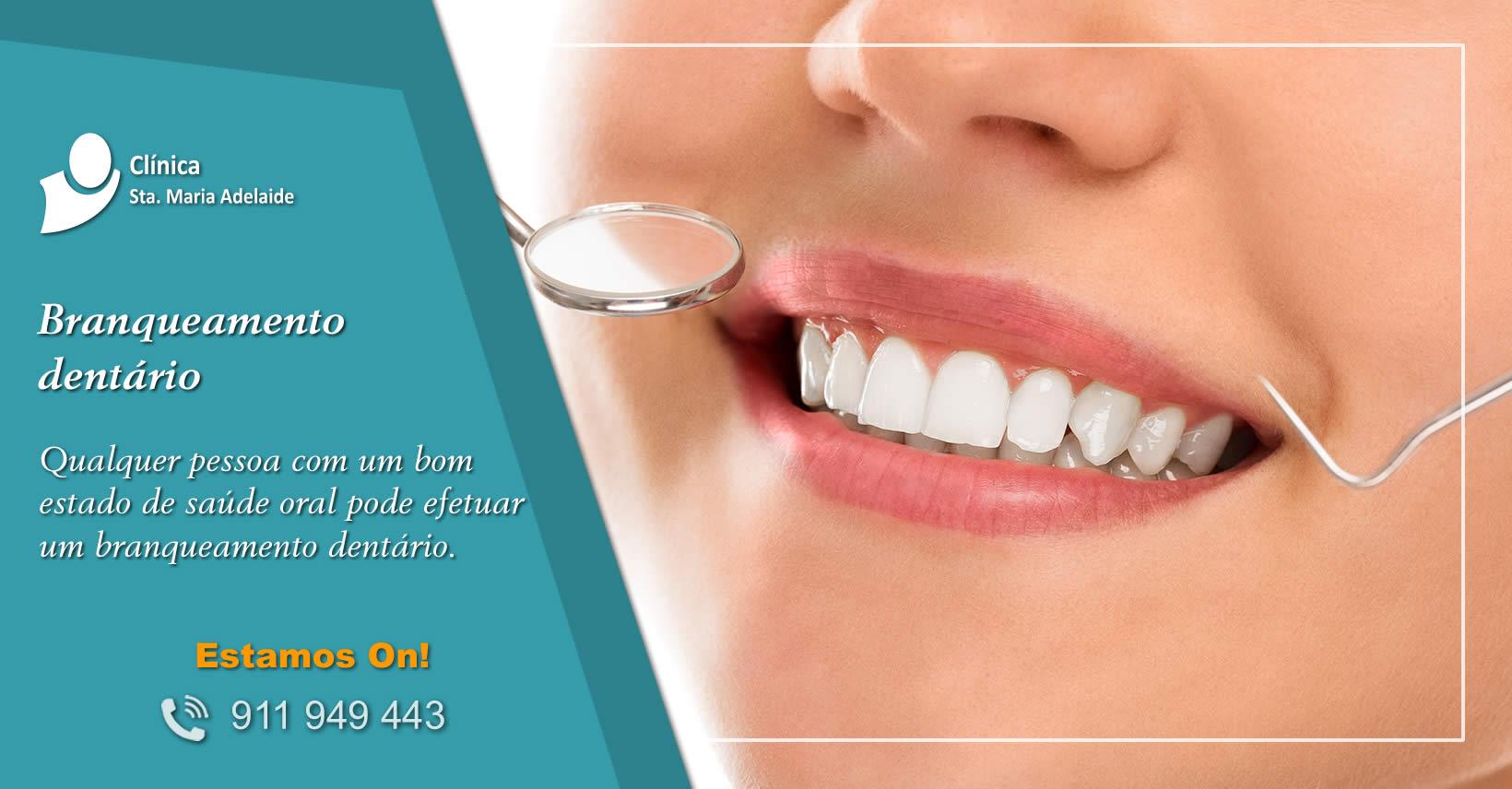 Branqueamento dentário Clinica Dentres Porto Gaia
